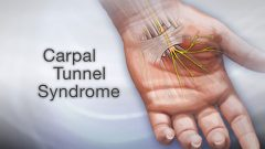 Carpal Tunnel Syndrome and Treatment Host Yuppie Article Directory