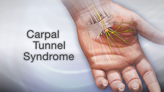 Carpal Tunnel Syndrome and Treatment - Host Yuppie Article Directory